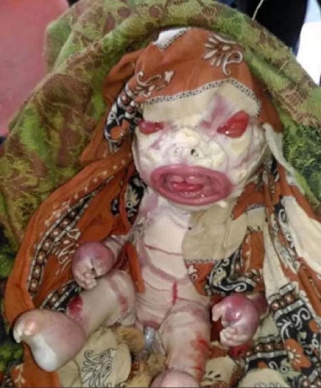 El niño nació con una extraña enfermedad parecido a un aliens