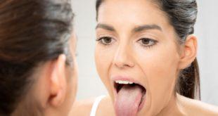 La lengua muestra tu salud