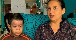 La madre de Yalik Peña, padeció también de epidermólisis bullosa