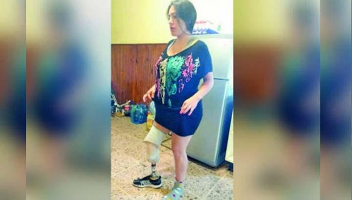 Fue por una liposucción y salió sin una pierna
