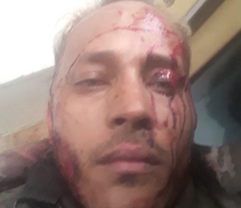 Óscar Pérez, intenta entrega pacífica pero recibe disparos