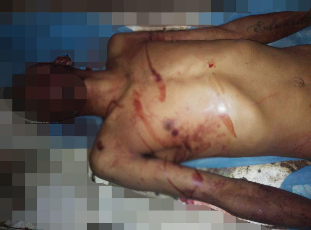 Recibió varios disparos que le quitaron la vida en Vidalguia