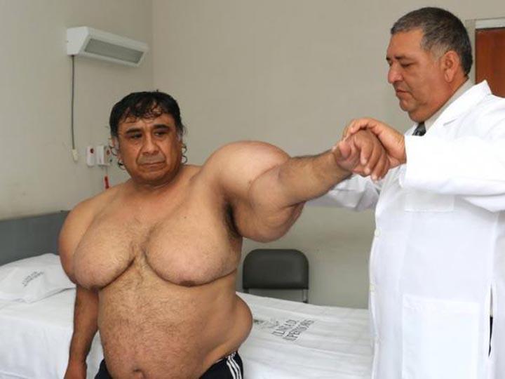 Alejandro Ramos, el buzo peruano que tiene su cuerpo inflado