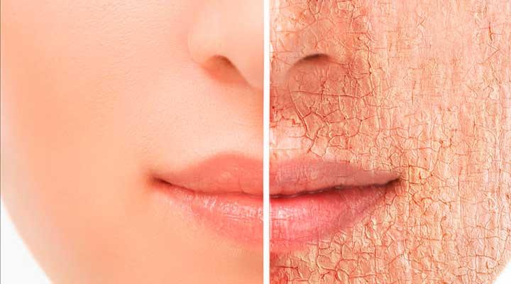 La piel debe estar bien hidratada y sana para mantenerse radiante.