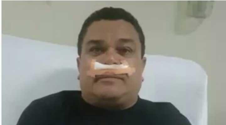 Er Conde del Guacharo sufrió un accidente en la parte interna de un avión.
