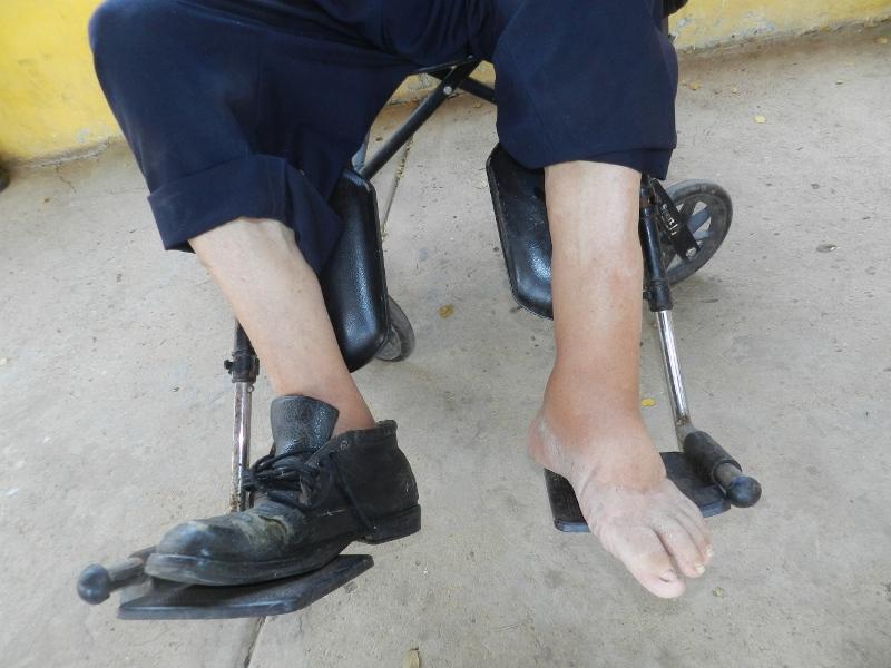 Urge tratamiento con antibi_ticos en pierna izuierda del profe Gonz_lo Abreu